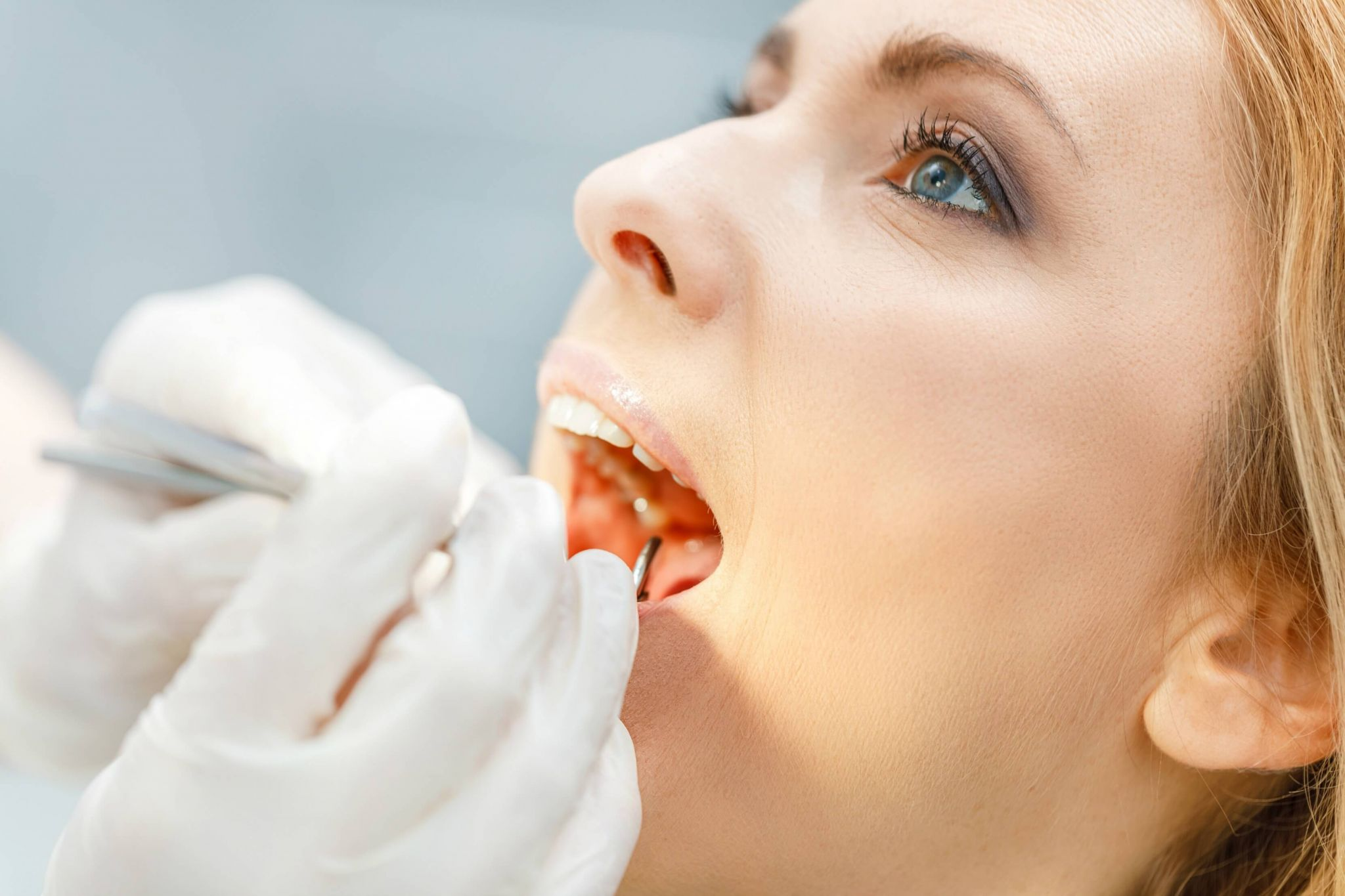 problems with my teeth - woman having a dental checkup